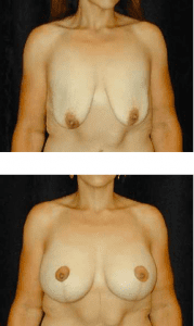 Dr. Ip Breast Lift Patient